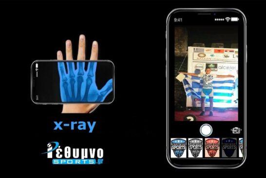 «X-ray» με τον Γιάννη Δαβαρία!