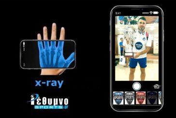 X-ray με τον Μανώλη Σκουλούδη!