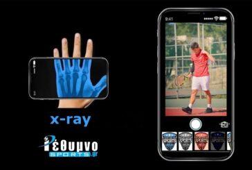 X-ray με τον Γιώργο Νουχάκη!