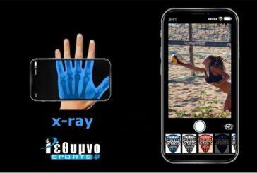 X-ray με την Άντζελα Παπά!